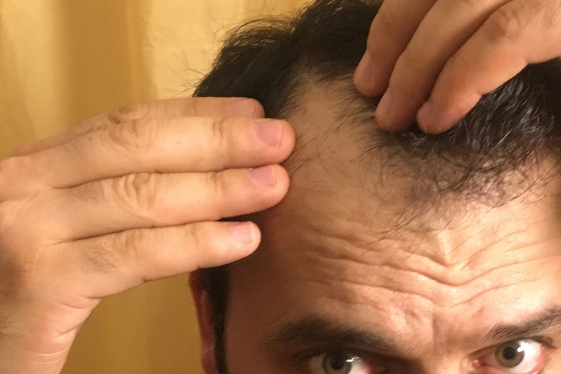 "Hair loss, ""man checking his hair due to hair loss"" Hair loss, why suddenly?"