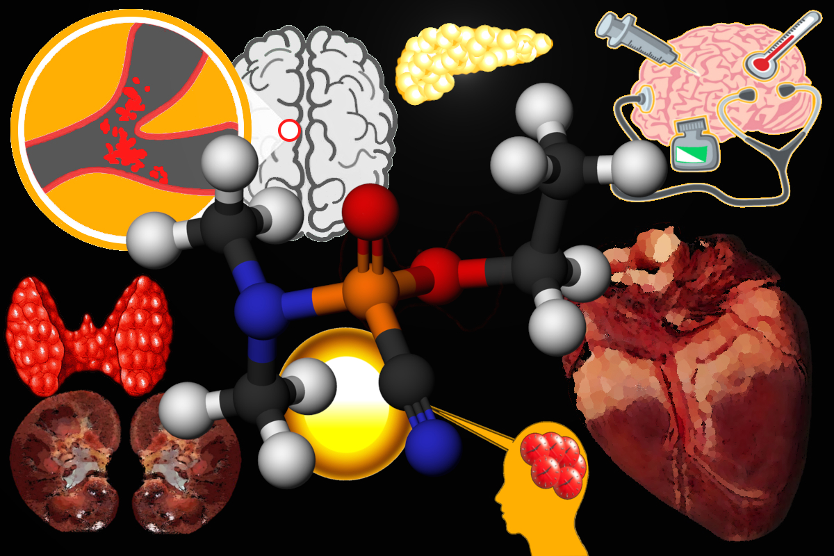 heart affects brain gland kidney, Early death signs caused by heart attack